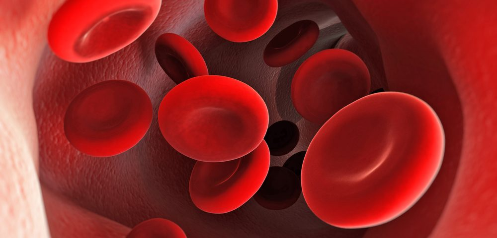 Sickle Cell Patients Have Higher Levels of Oxidative Stress, Study Finds