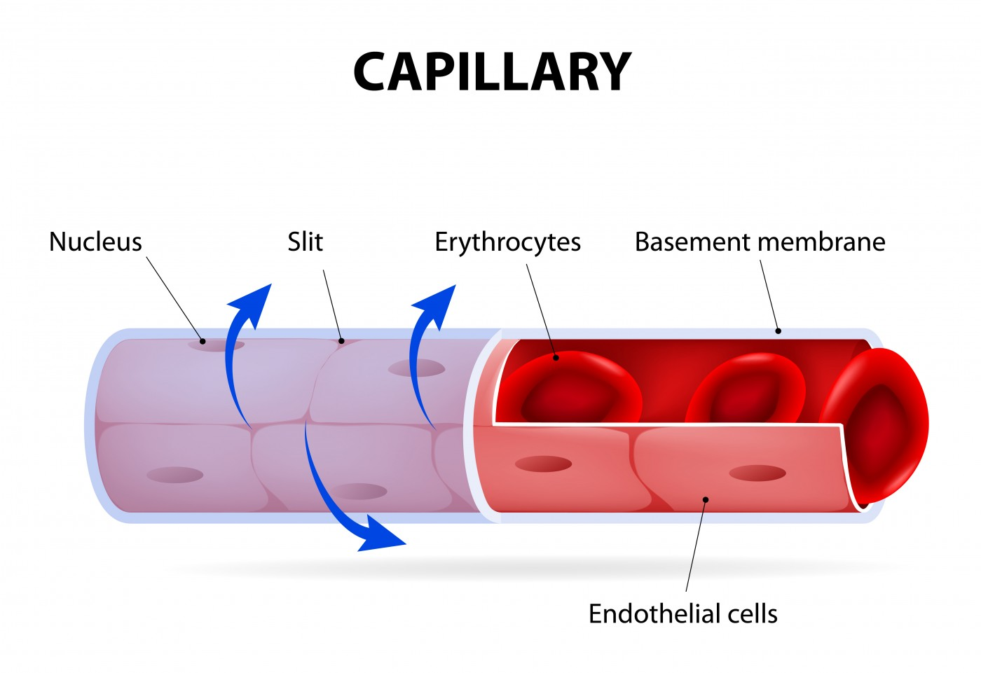 albuminuria in sickle cell disease