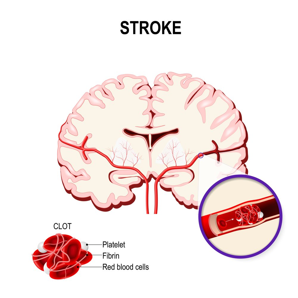 In Sickle Cell Patients Who Had Stroke Therapy With Tpa