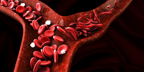 Prolong Pharma's Sanguinate Shows Promise in Reverting Shape of Red Blood Cells in SCD