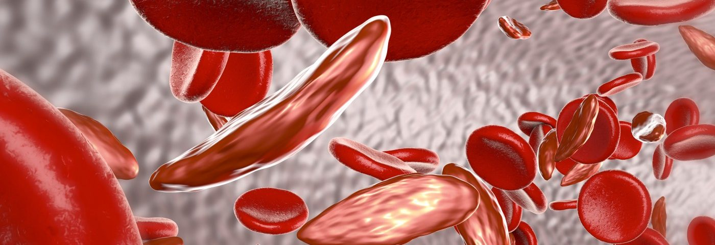 FDA Approves Endari, 1st Sickle Cell Treatment in Almost 20 Years, for Patients Age 5 and Older