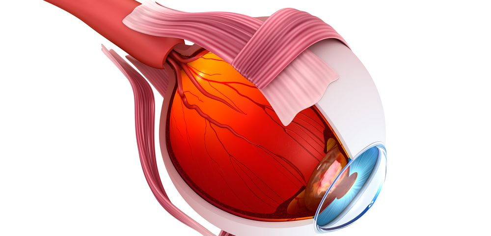 Expert Analysis Updates Advice on Managing Sickle Cell Retinopathy