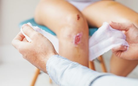 Voxelotor May Reduce Severity and Number of Leg Ulcers, Trial Analysis Suggests