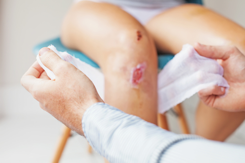Holistic Treatment Approach May Help Heal Long-Lasting SCD-Related Skin Ulcers, Case Report Shows