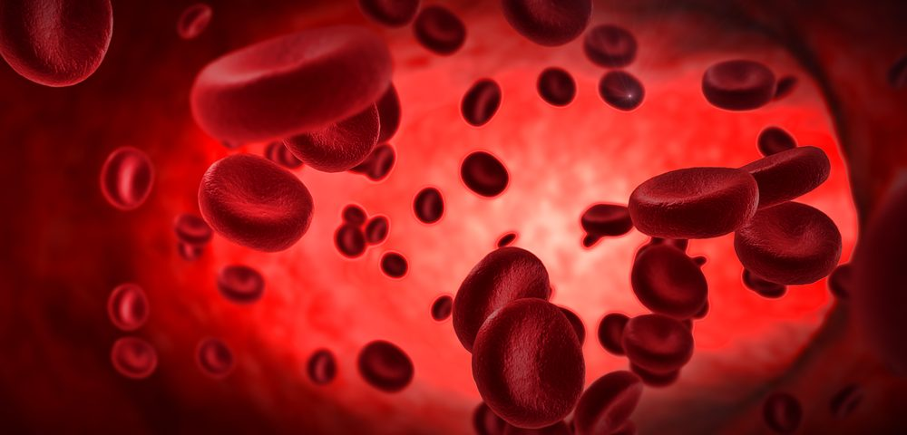 Phase 1 Trial to Test Under-the-Skin Injection of Sevuparin in Sickle Cell Patients