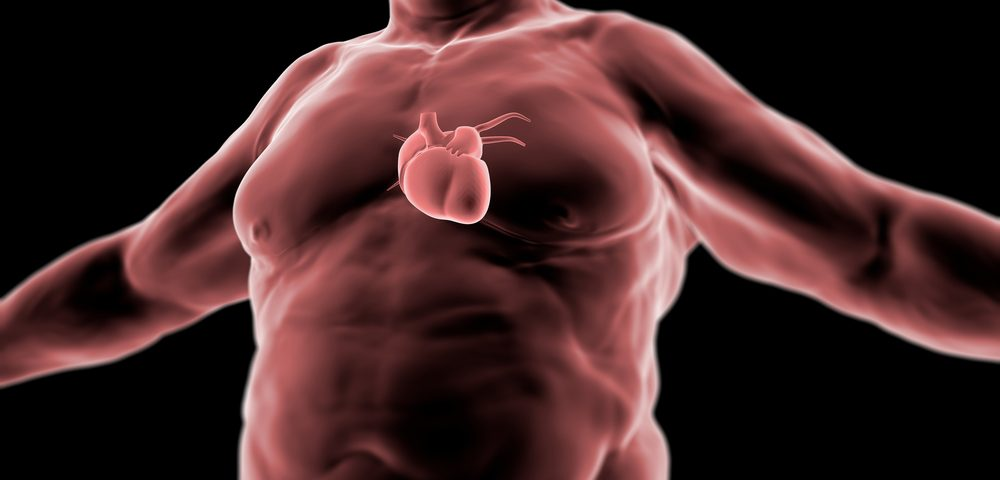 Weight-loss Surgery May Help Reduce VOCs in Morbidly Obese SCD Patients