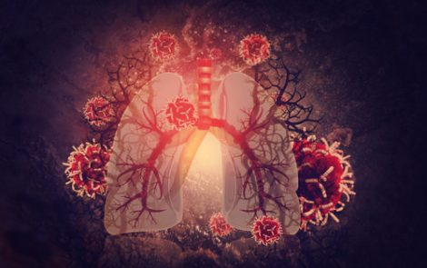 Alterations in Blood Vessels of the Lungs Should be Monitored in SCD Patients, Study Says