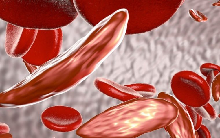 upper GI bleeding risk